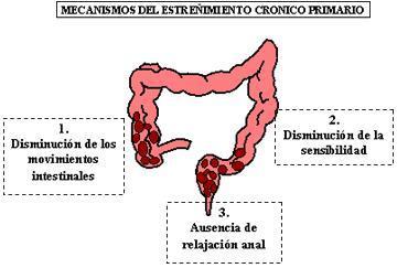 Bacterias contra el Síndrome del Intestino Irritable