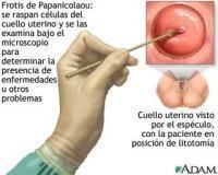 Destacan la importancia de la detección temprana en prevención de cáncer cervical