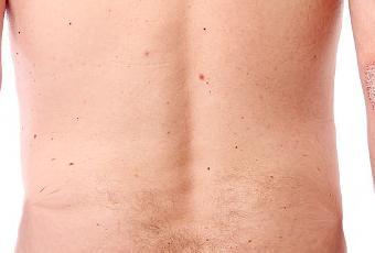 La puva-terapia atopicheskogo de la dermatitis