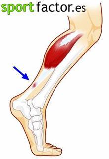 La tendinitis