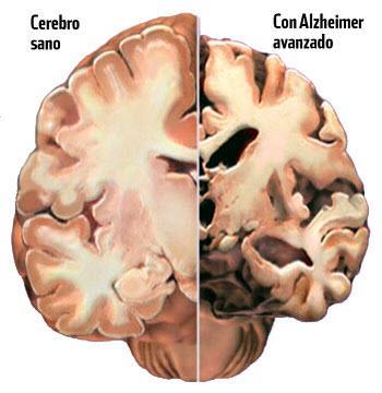 Las proteínas que desencadenan neurodegeneración