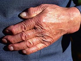 La artrosis en las manos puede significar obesidad
