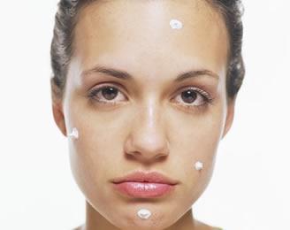 Medicina alternativa para el acné