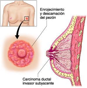 Un tipo de cáncer de mama poco común
