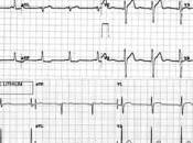 nutrición perro enfermo corazón (insuficiencia cardiaca, cardiopatía, cardiaco…)