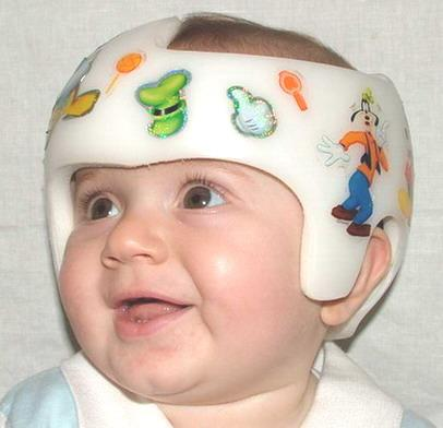Mi niño tiene la cabeza achatada: Plagiocefalia postural