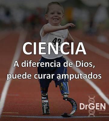 amputados1 Dios no cura amputados, la ciencia sí