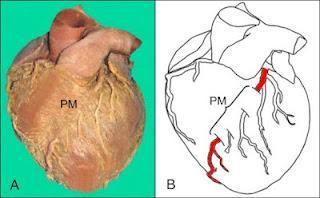 """El Síndrome de ordenamiento coronario,  puente intramiocárdico o """"milking"""""""
