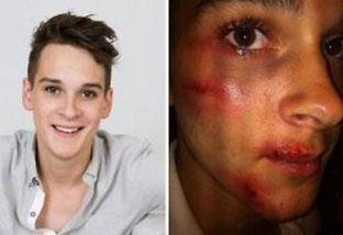 Joven gay multado por fingir ser víctima de agresión homófoba
