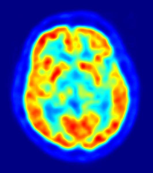 Los instrumentos de investigación más utilizados en Neuropsicología