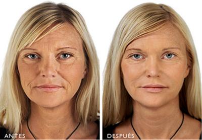 Hedonai y sus tratamientos faciales