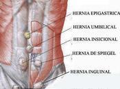Hernia Spiegel.