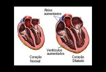 Tratamiento natural de la cardiomegalia - Paperblog