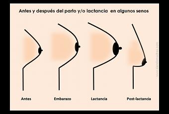 Si es posible aumentar a expensas de los ejercicios el pecho