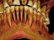 Encuentran momia egipcia 2.100 años antigüedad empastes dientes