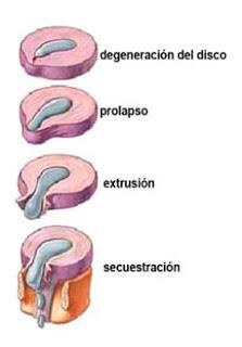 ¿Qué es una extrusión de disco en una Hernia Discal?
