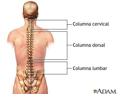 Alivio para el dolor de espalda alta. Remedios caseros