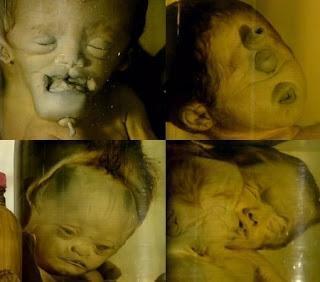 EEUU y genocidio del agente naranja / Orange agent in Vietnam