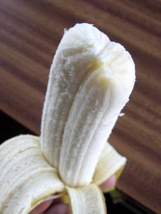 Difalia es la condición que hace a los hombres de nacer con dos penes