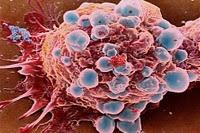 Orégano...... y cáncer de prostata