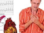 Urgencia médica presencia infarto miocardio