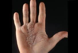 El tratamiento de la psoriasis en con el peróxido por el hidrógeno