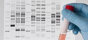 El melanoma relacionado con un gen causante de obesidad