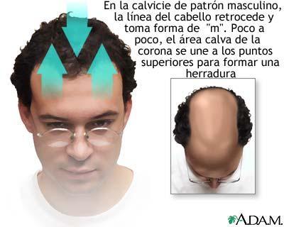La máscara para la reconstitución de los cabello habiendo dado