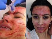 Kardashian sufre belleza