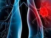 Investigan terapia para prevenir crecimiento cáncer pulmón