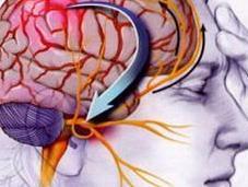 Consejos para aliviar trastorno migraña