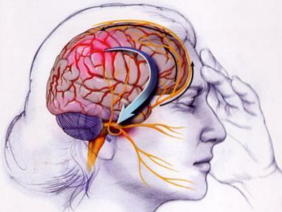 Consejos para aliviar el trastorno de la migraña
