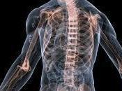 Osteoporosis Masculina