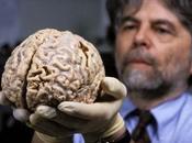 Estrujando Cerebro
