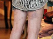Lindsay moretones piernas Lohan (FOTO)