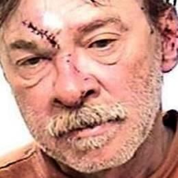 Hermano de Madonna resulta herido durante su arresto