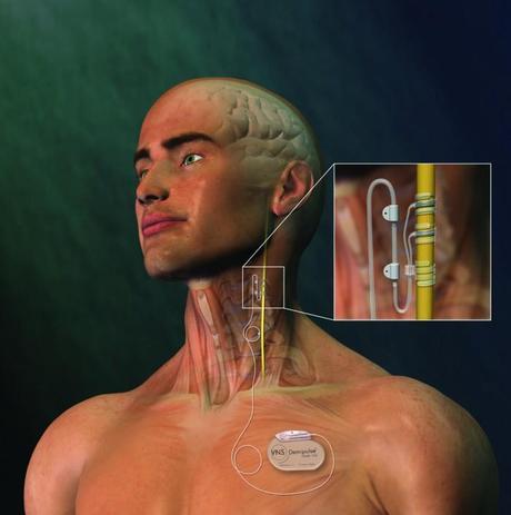 Estimulación eléctrica del nervio Vago: Una alternativa para el tratamiento de la depresión resistente