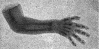 La primera radiografía de un recién nacido en España