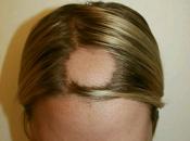 ¿cuál mejor tratamiento alopecia areata?