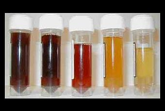 El tratamiento de la osteocondrosis el depósito de las sales
