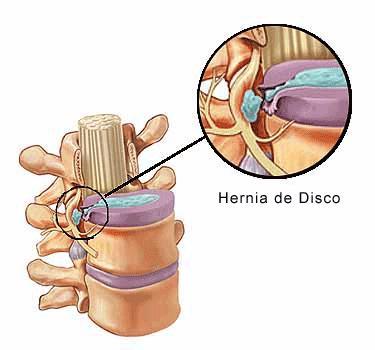 Que no es posible hacer a las hernias intervertebrales del departamento lumbar el tratamiento