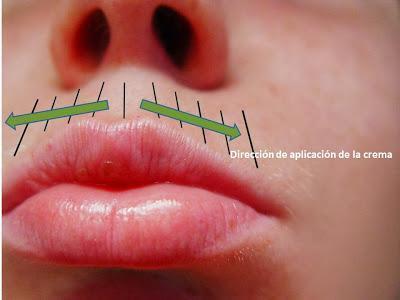 direccion de aplicacion de los antiarrugas
