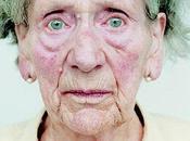 Alzheimer: enfermedad destroza espíritu