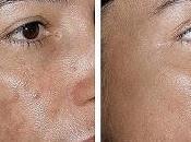 Como eliminar aclarar manchas rostro