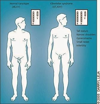 Síndrome de Klinefelter y síndrome de Xyy