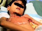 Crónicas afganas: Daños colaterales