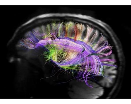 Las redes del cerebro