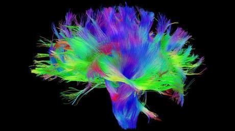 Neuromanagement: ¿El Cerebro Masculino es más grande que el Femenino?