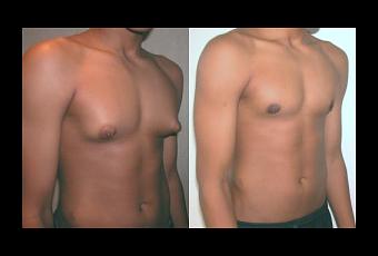 Agrandamiento de senos en los hombres: Solución