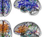 Hombres Mujeres…. diferencias cerebro) hay?